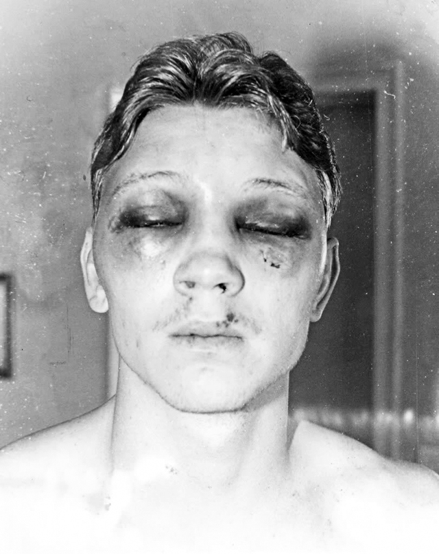 Lice Bilija Kolinsa po završetku borbe sa Luisom Restom.